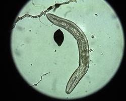 Image of Nematode